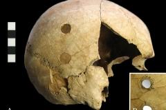 Cranium-1